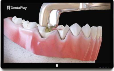 Tooth extraction: Treatment for Socket Preservation. Ref.: 09