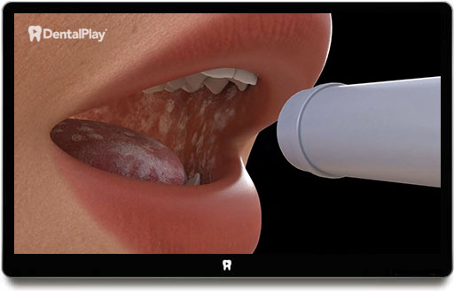 Oral candidiasis and angular cheilitis. Ref.: 60a