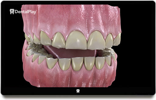 Abfraction, Abrasion, Attrition, Erosion, and Resorption. Ref.: 65