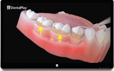 Periodontitis and its Influence on Health. Ref.: 01
