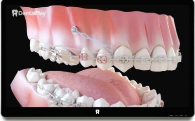 Orthodontics: Elements of the Orthodontics and its Role. Ref.: 03