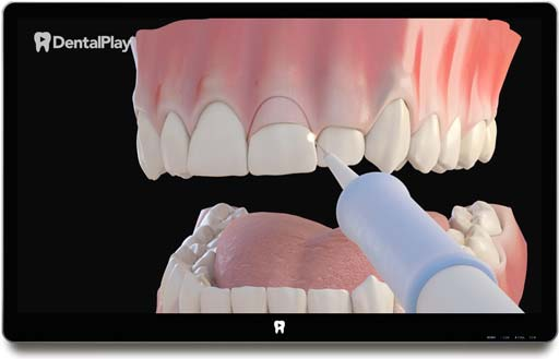Gingivectomy: Treatment of Gummy Smile. Ref.: 05