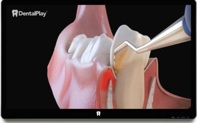 Treatment of Periodontal Disease: Scaling and Root Planing. Ref.: 06