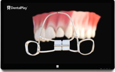 Orthodontic Devices: Palatal Expander and Headgear. Ref.: 07