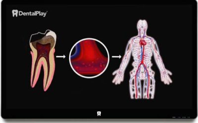 Cavities and the Influence of Tooth Decay on Health. Ref.: 15