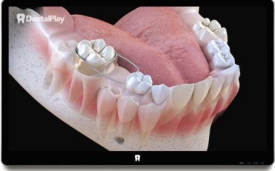 Baby Teeth and the Use of Space Maintainers. Ref.: 24