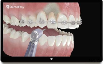 Orthodontic Extrussion. Ref.: 34