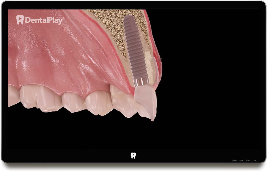 Post-Extraction Immediate Implant in Combination with Soft and Hard Tissue Grafting. Ref.: 56